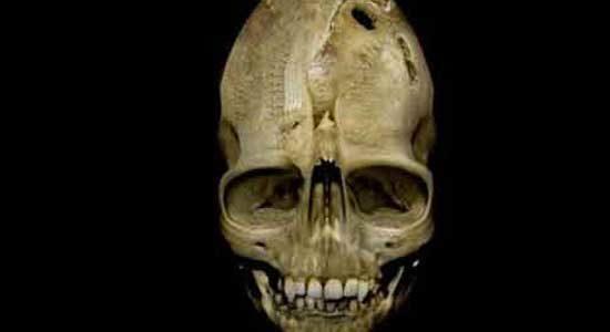 Удлиненные черепа, странные артефакты древнего мира.